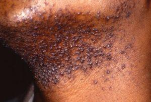 what-causes-razor-bumps